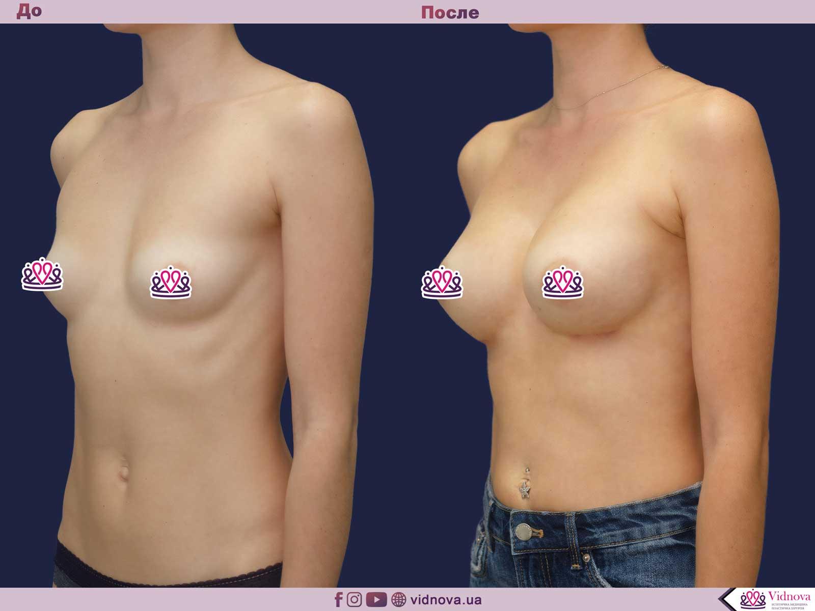 Увеличение груди: Фото ДО и ПОСЛЕ - Пример №62-2 - Клиника Vidnova