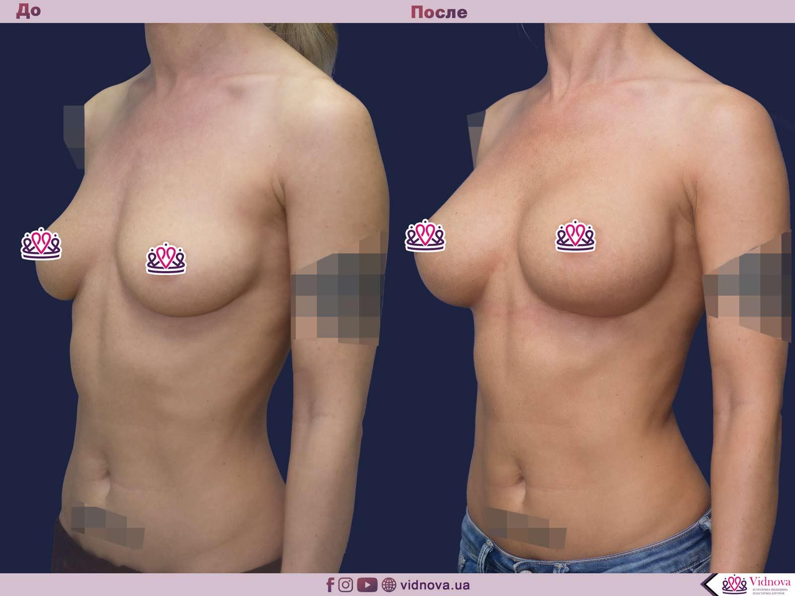 Увеличение груди: Фото ДО и ПОСЛЕ - Пример №57-2 - Клиника Vidnova