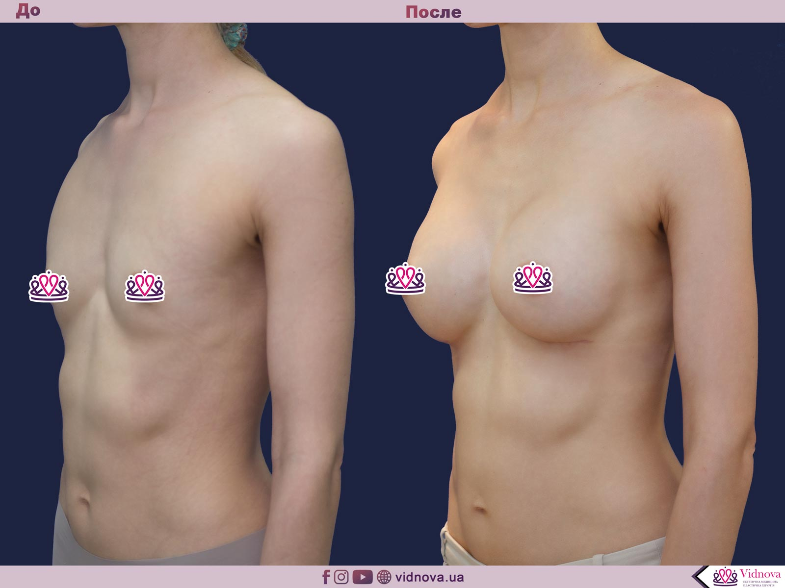 Увеличение груди: Фото ДО и ПОСЛЕ - Пример №52-2 - Клиника Vidnova