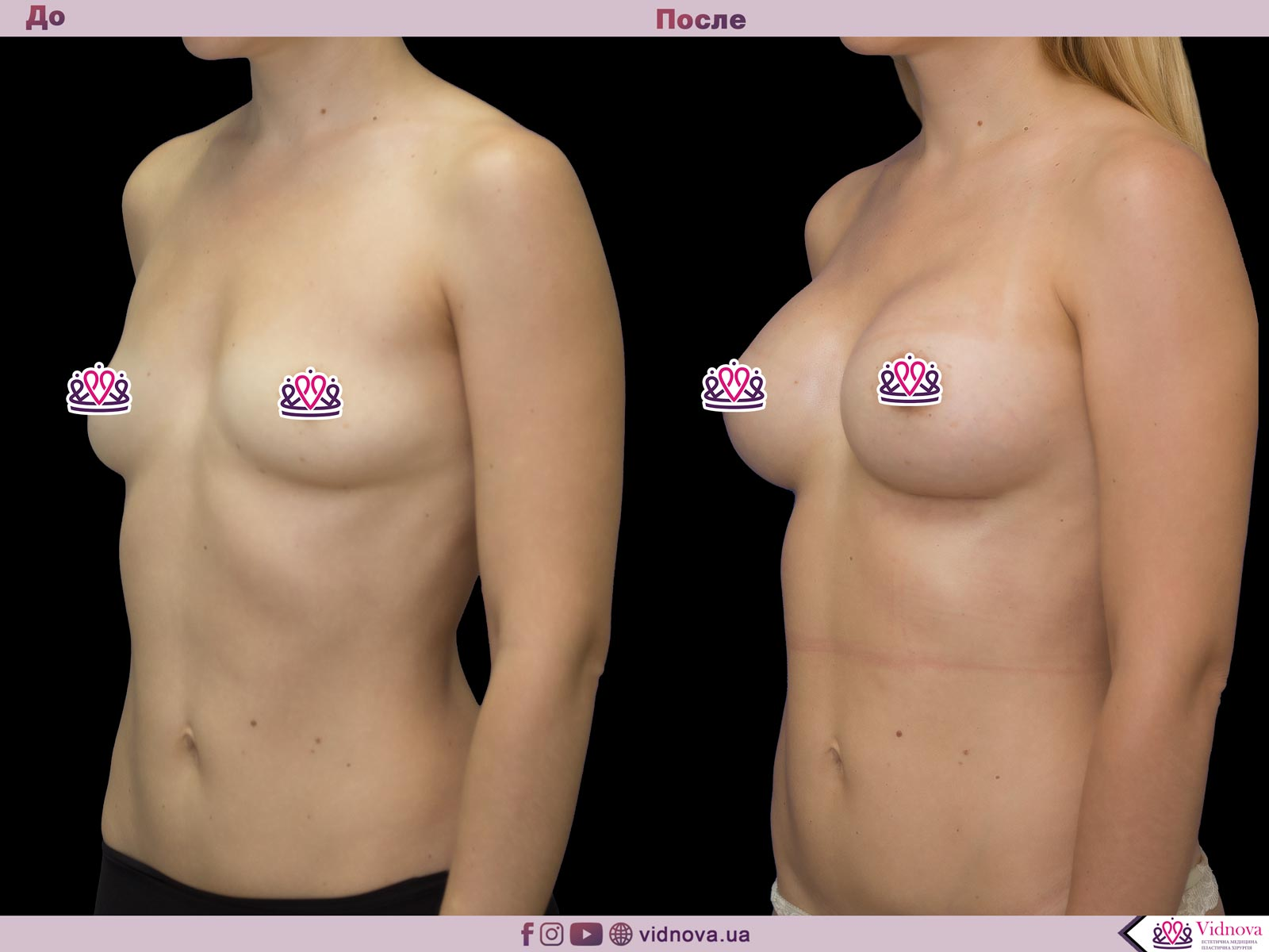 Увеличение груди: Фото ДО и ПОСЛЕ - Пример №54-2 - Клиника Vidnova