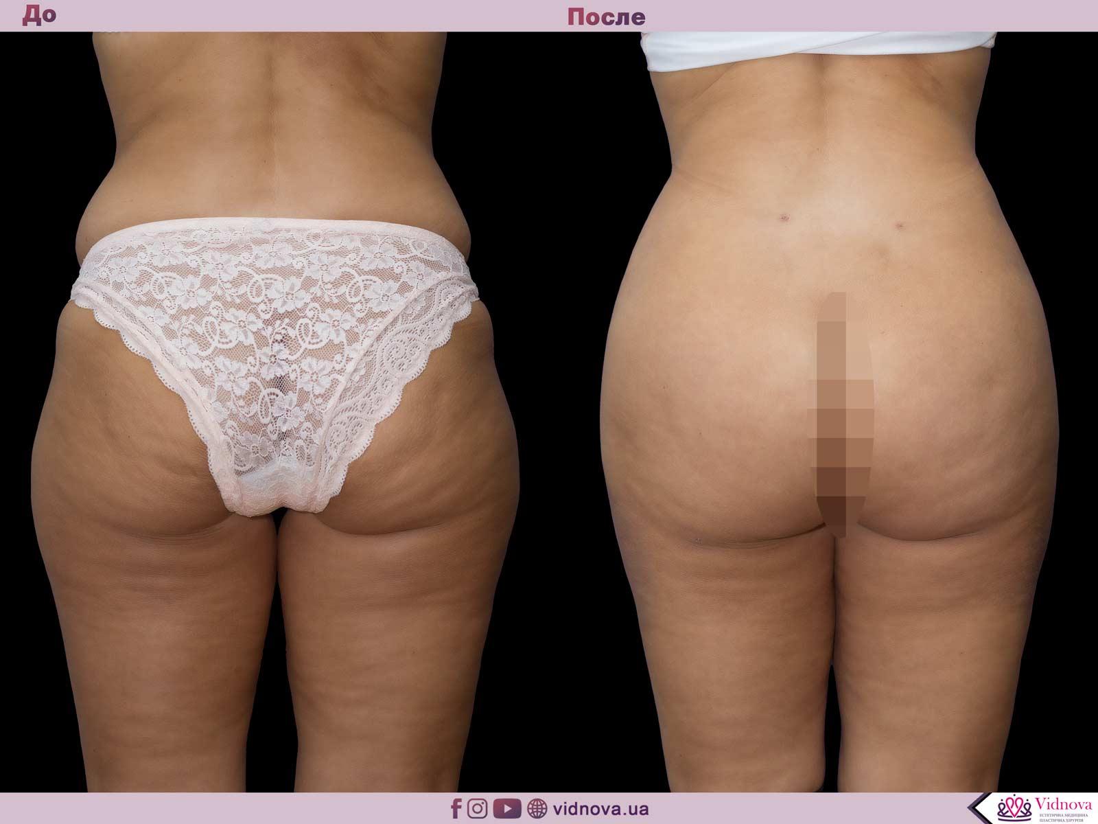 Липоскульптурирование: Фото До и После - Пример №3-2 - Клиника Vidnova