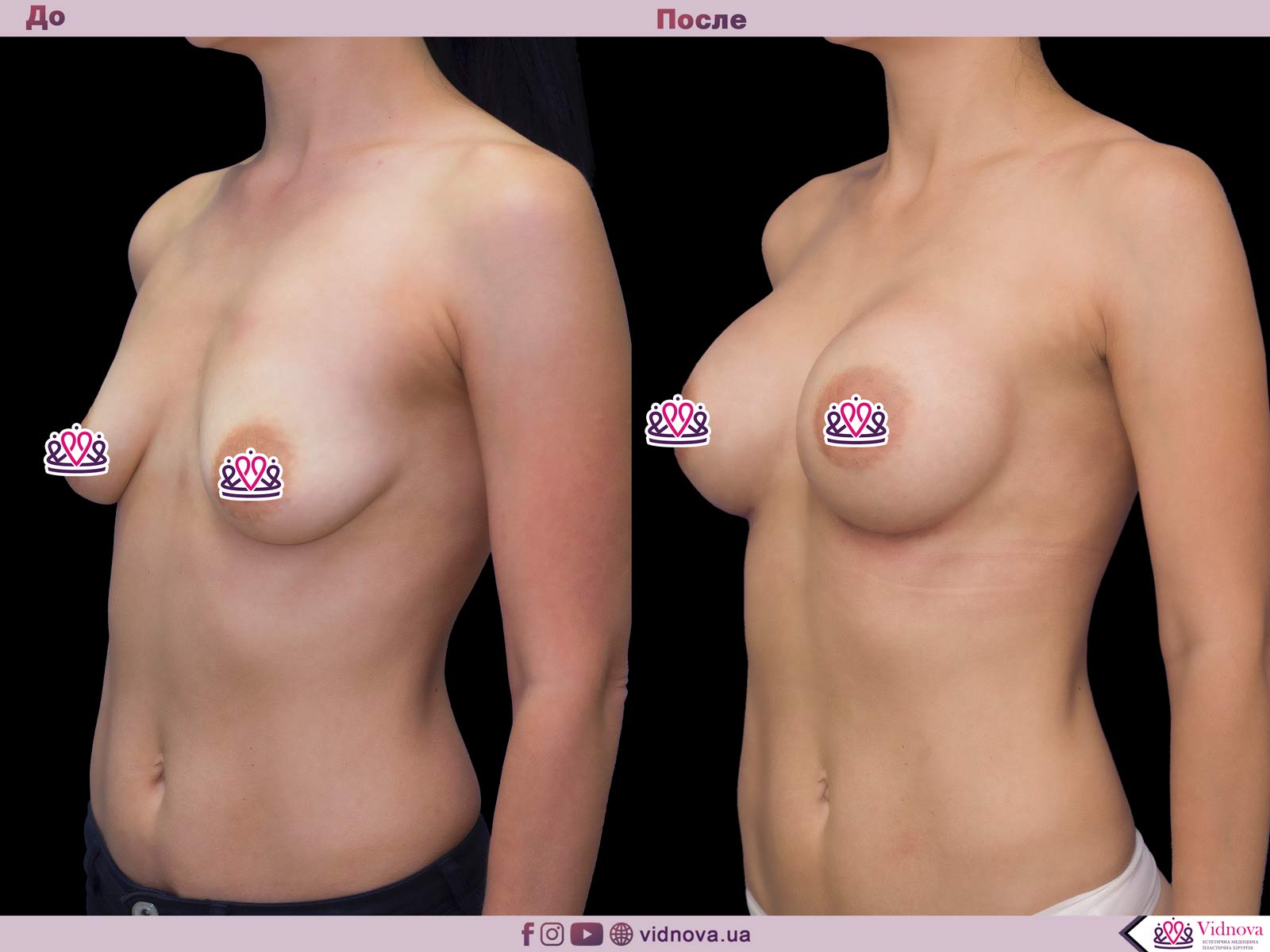 Увеличение груди: Фото ДО и ПОСЛЕ - Пример №53-2 - Клиника Vidnova
