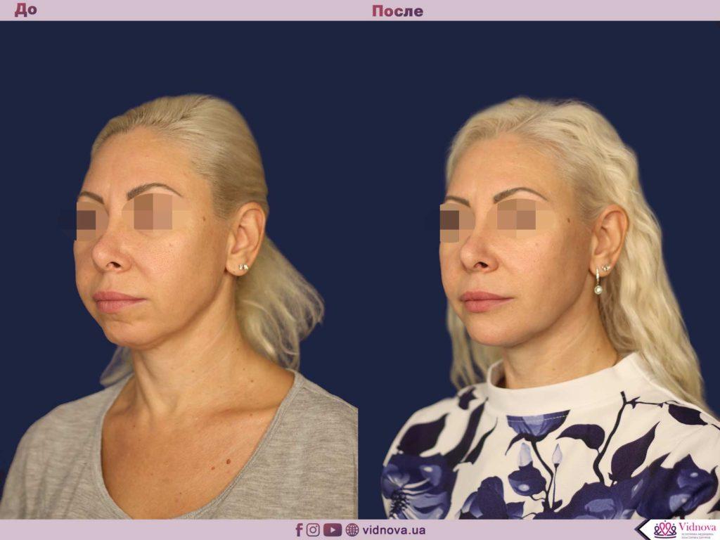 Эндопротезирование подбородка 2 68 1024x768 - клиника VIdnova
