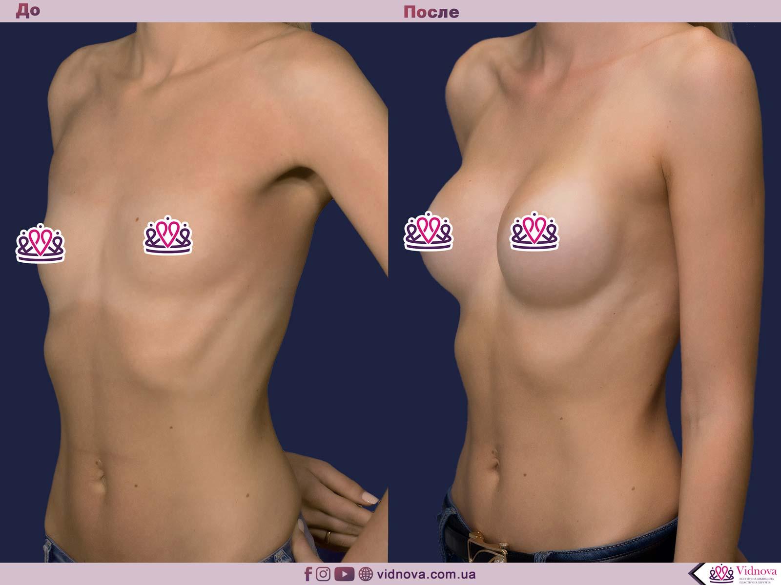 Увеличение груди: Фото ДО и ПОСЛЕ - Пример №83-2 - Клиника Vidnova