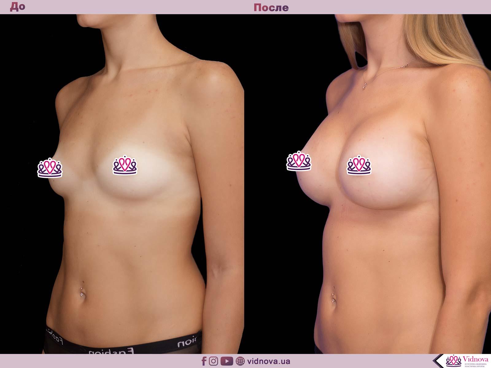 Увеличение груди: Фото ДО и ПОСЛЕ - Пример №50-2 - Клиника Vidnova