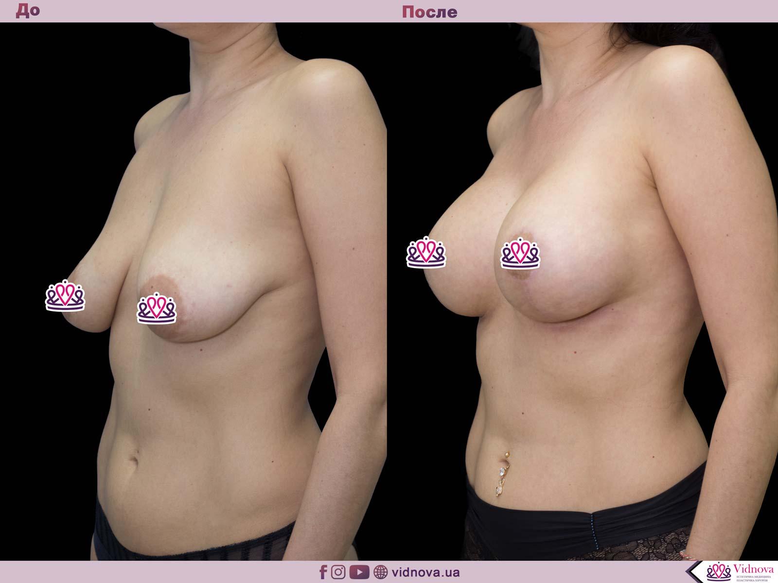 Подтяжка груди: Фото ДО и ПОСЛЕ - Пример №22-2 - Клиника Vidnova