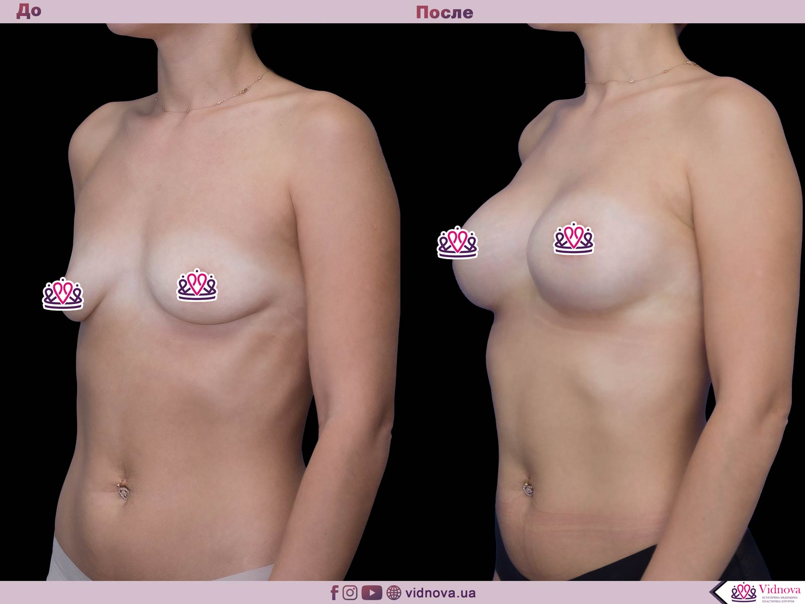 Увеличение груди: Фото ДО и ПОСЛЕ - Пример №49-2 - Клиника Vidnova