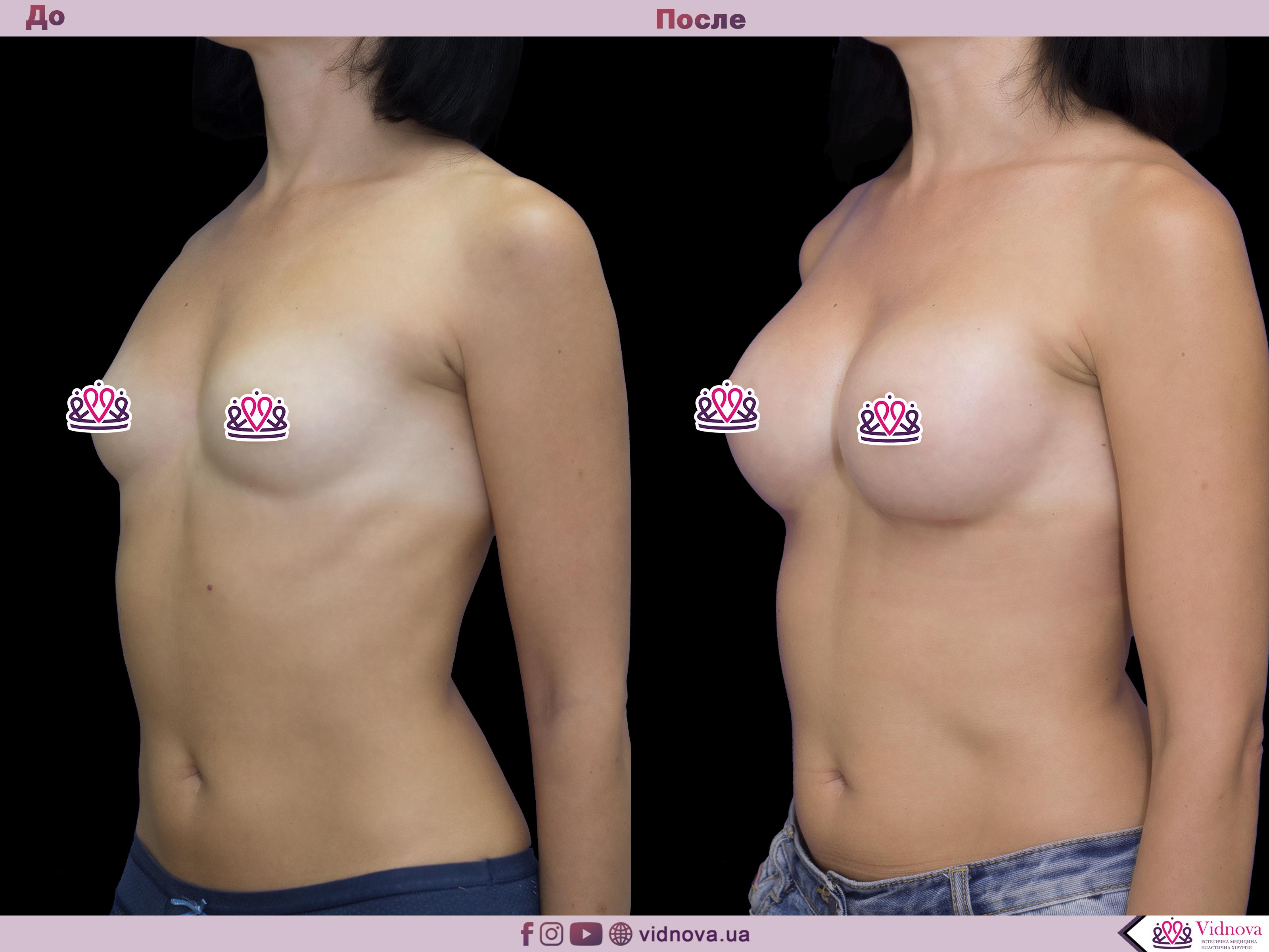 Увеличение груди: Фото ДО и ПОСЛЕ - Пример №48-2 - Клиника Vidnova
