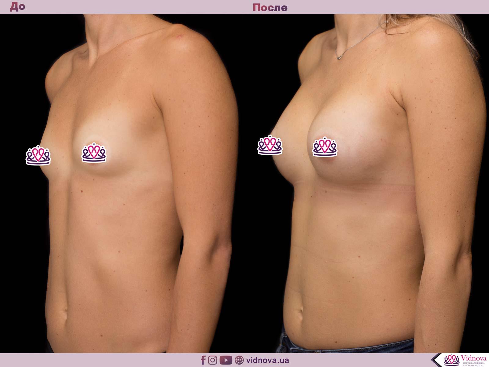 Увеличение груди: Фото ДО и ПОСЛЕ - Пример №46-2 - Клиника Vidnova