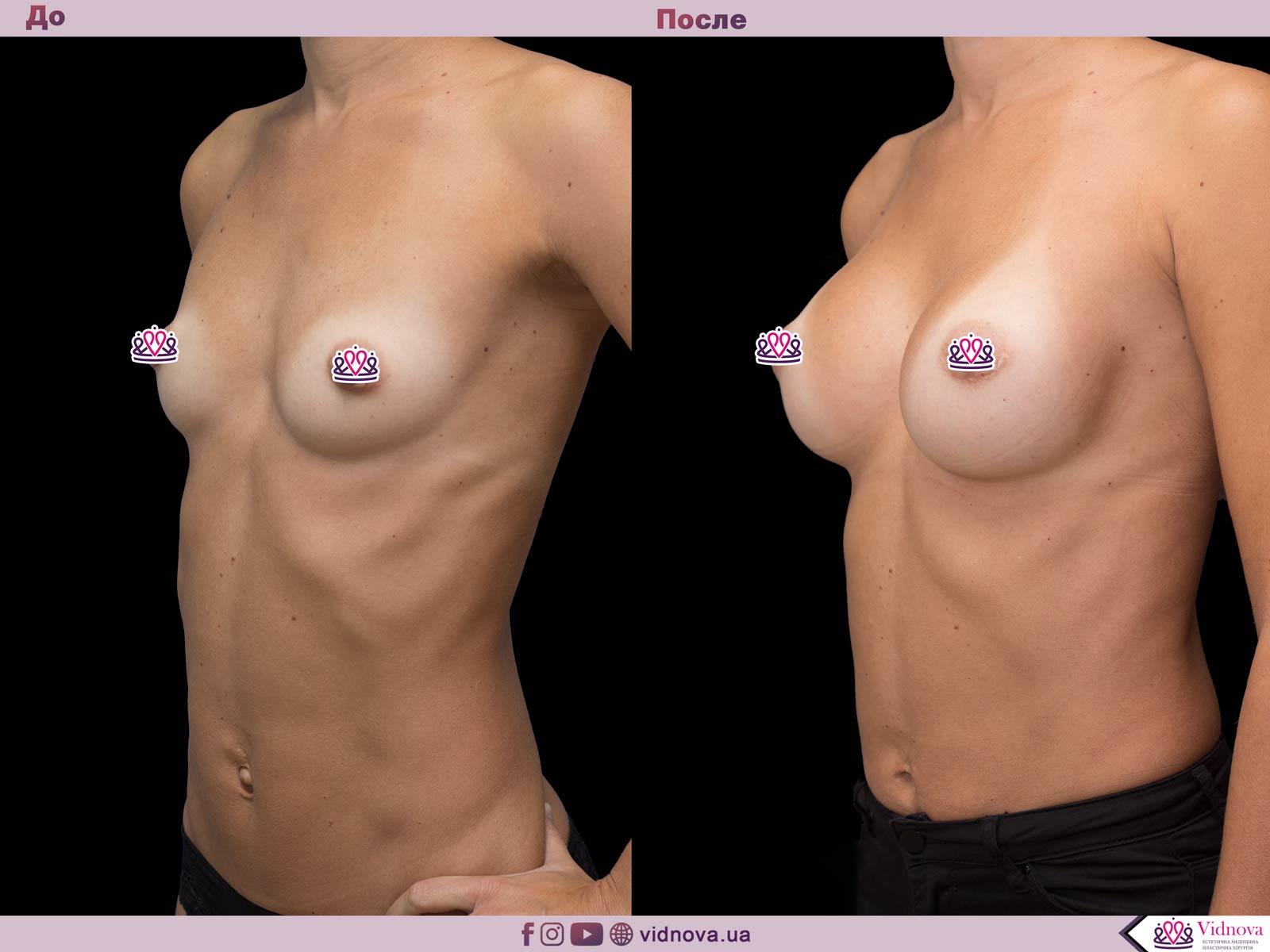 Увеличение груди: Фото ДО и ПОСЛЕ - Пример №45-2 - Клиника Vidnova