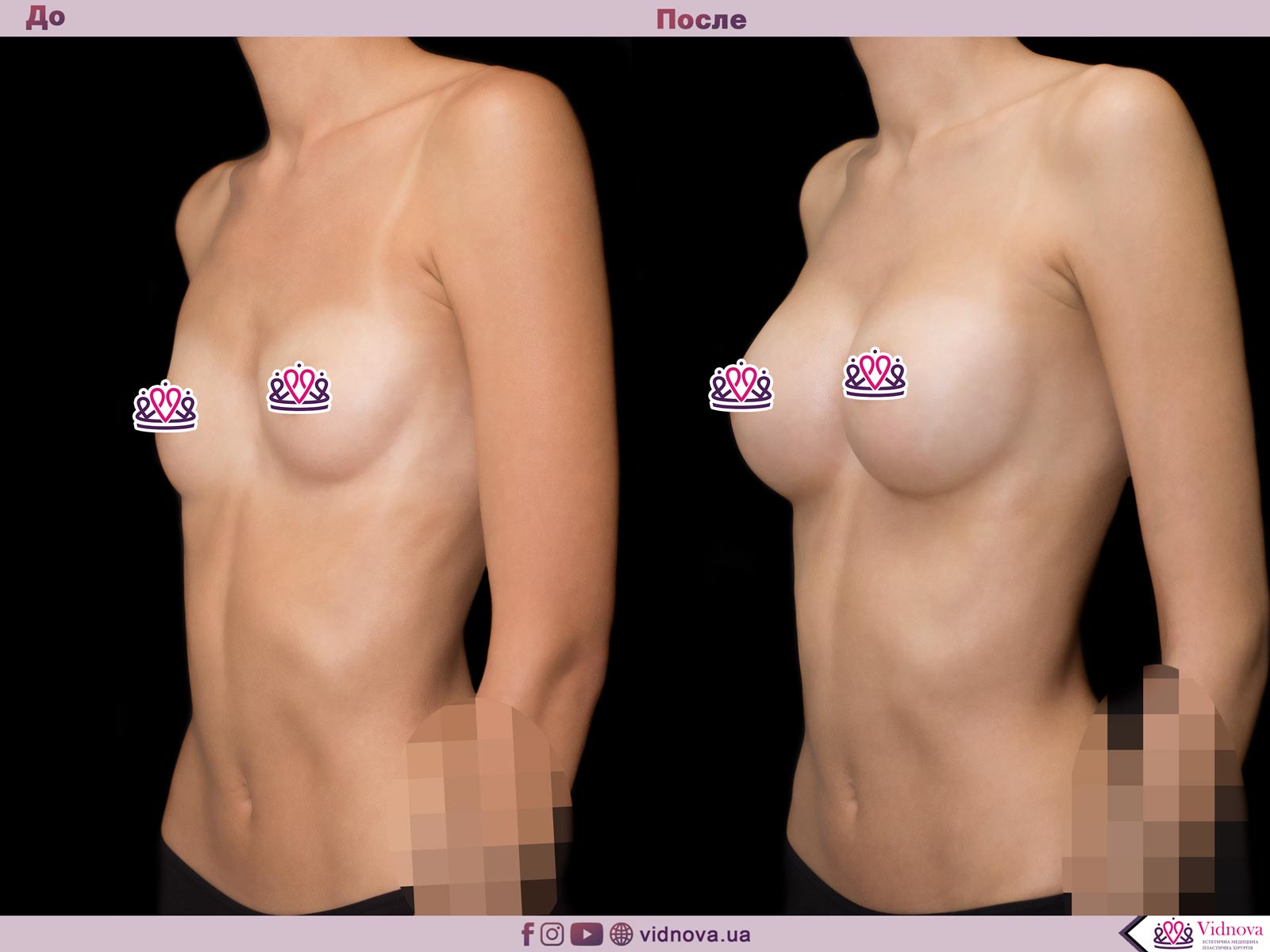 Увеличение груди: Фото ДО и ПОСЛЕ - Пример №38-2 - Клиника Vidnova