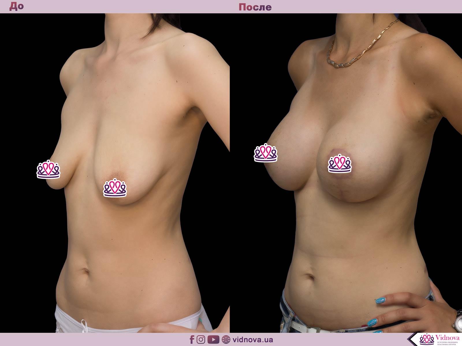 Подтяжка груди: Фото ДО и ПОСЛЕ - Пример №21-2 - Клиника Vidnova