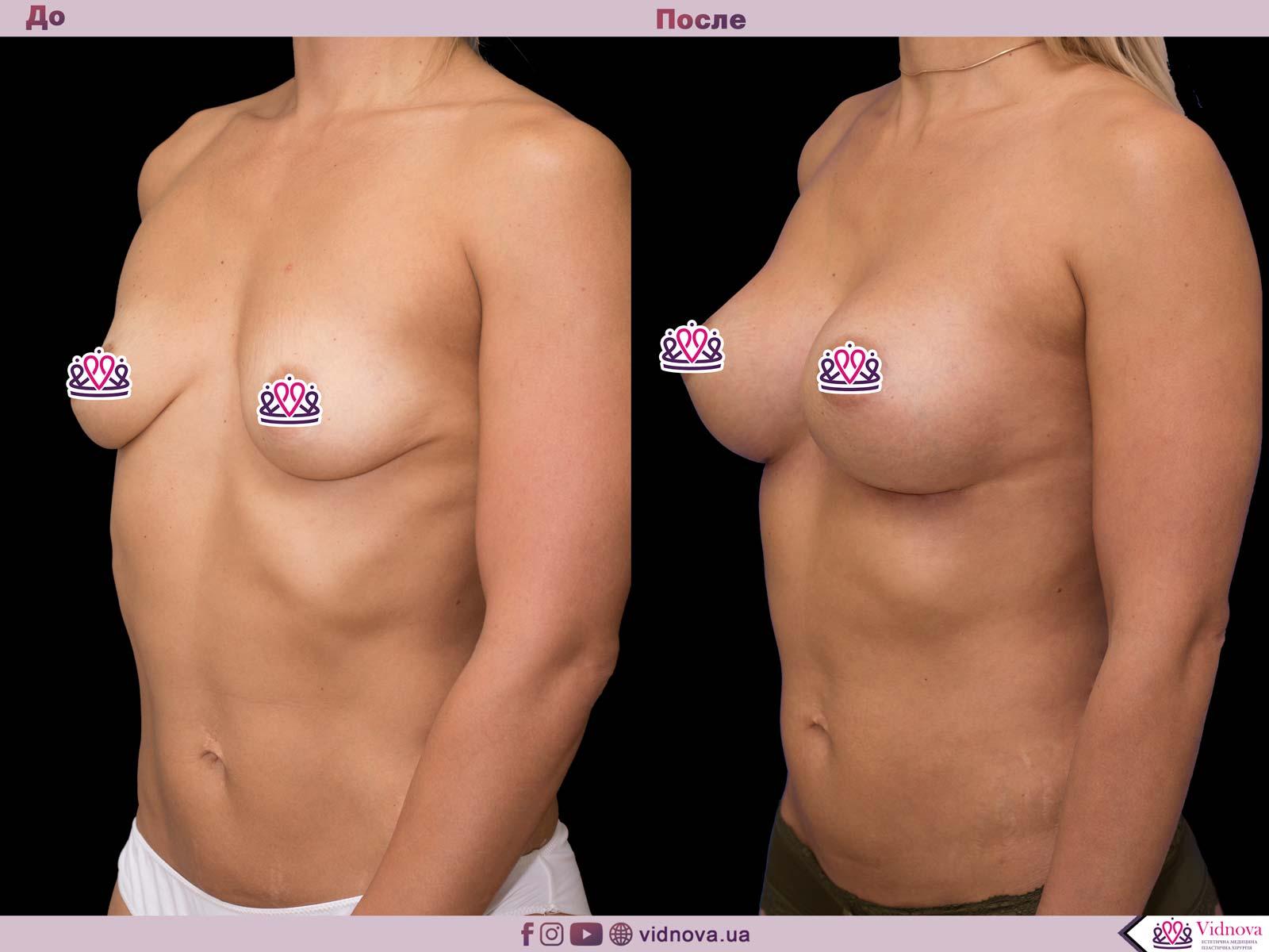 Увеличение груди: Фото ДО и ПОСЛЕ - Пример №41-2 - Клиника Vidnova