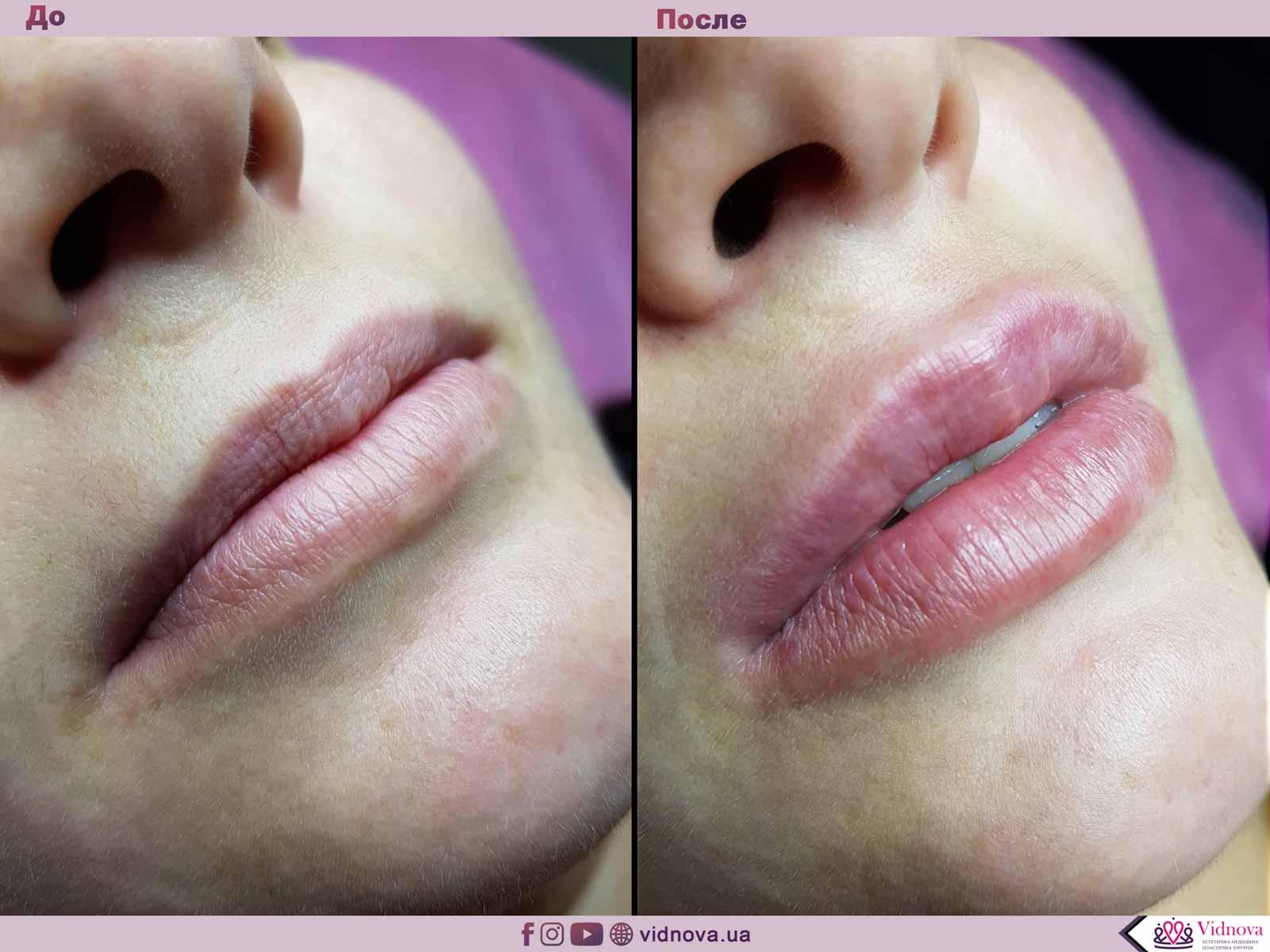 Увеличение губ: Фото До и После - Пример №14-1 - Клиника Vidnova