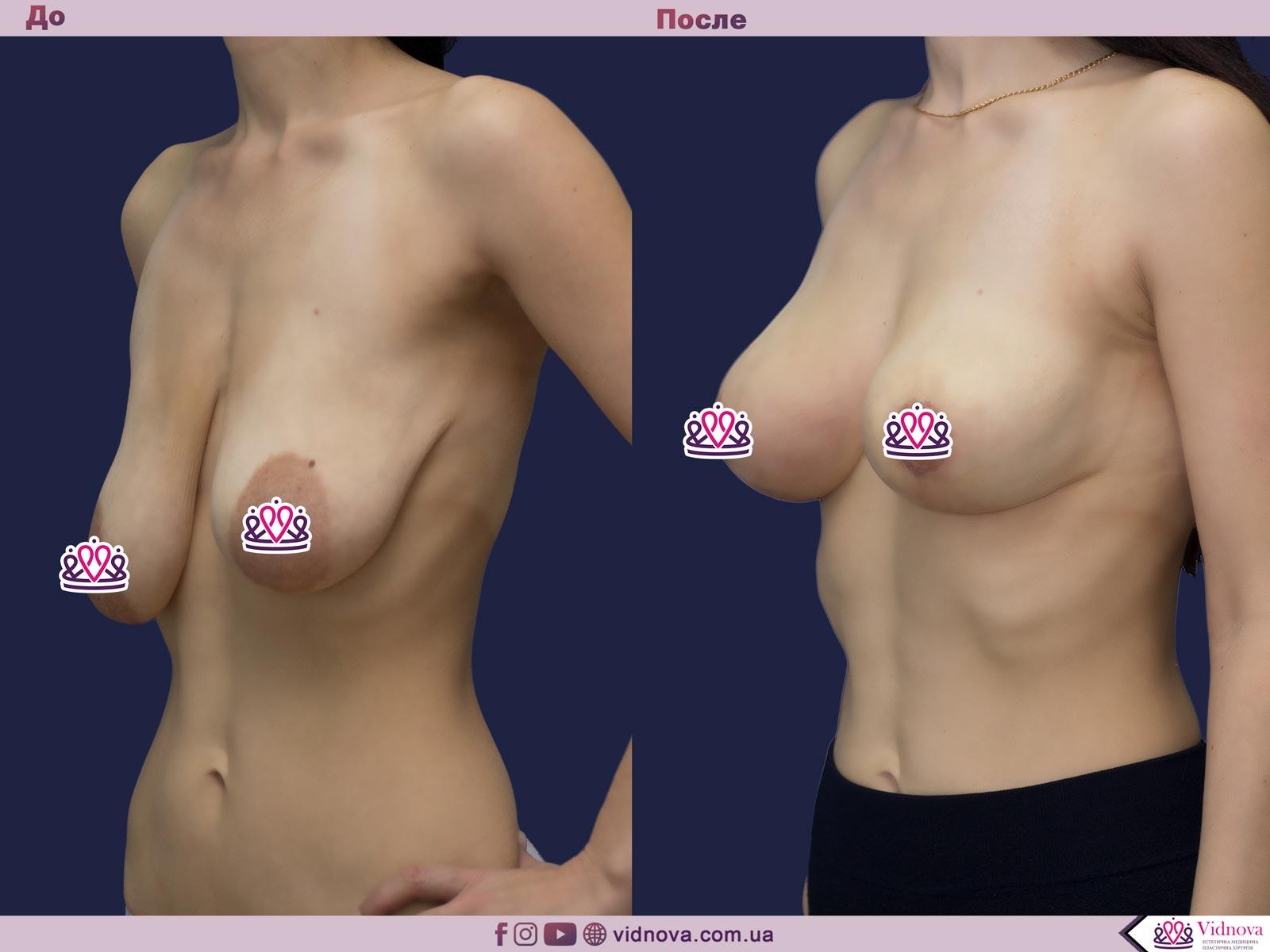Подтяжка груди: Фото ДО и ПОСЛЕ - Пример №26-3 - Клиника Vidnova
