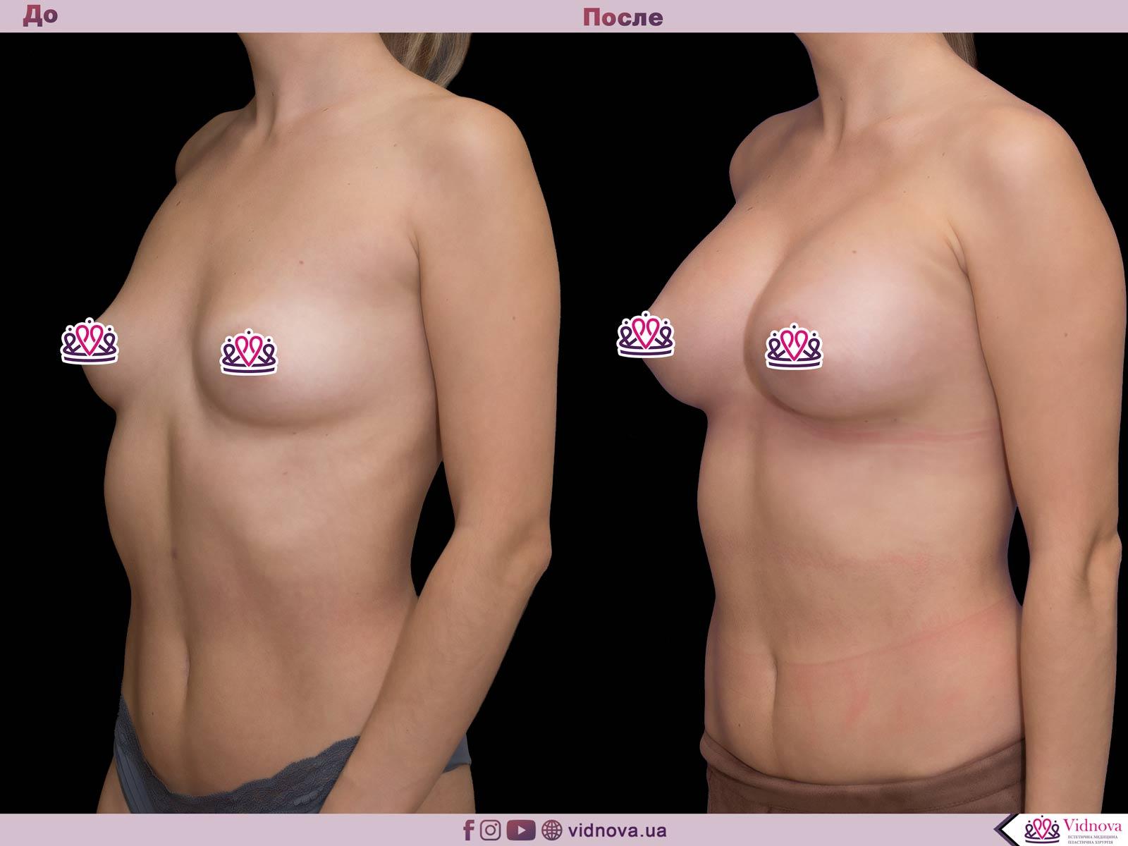 Увеличение груди: Фото ДО и ПОСЛЕ - Пример №34-2 - Клиника Vidnova
