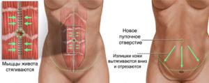 Абдоминопластика после кесарева сечения: возвращаем идеальную фигуру 22 2 300x119 - клиника VIdnova