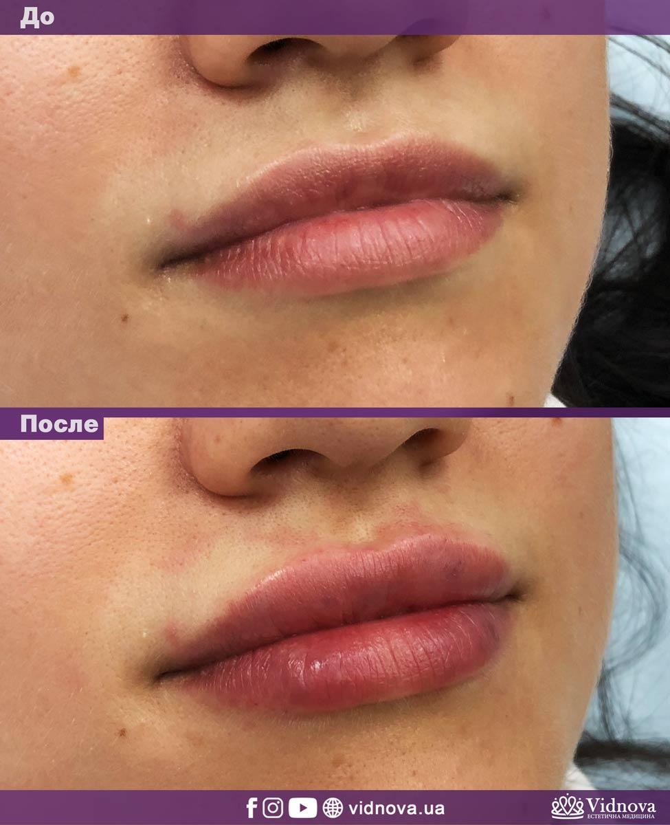 Увеличение губ: Фото До и После - Пример №8-1 - Клиника Vidnova