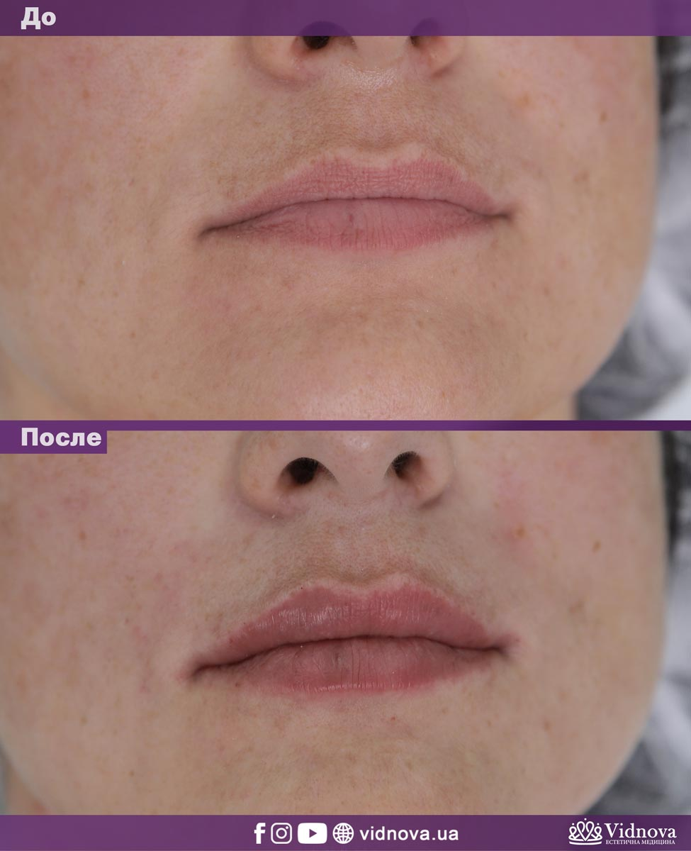 Увеличение губ: Фото До и После - Пример №10-2 - Клиника Vidnova
