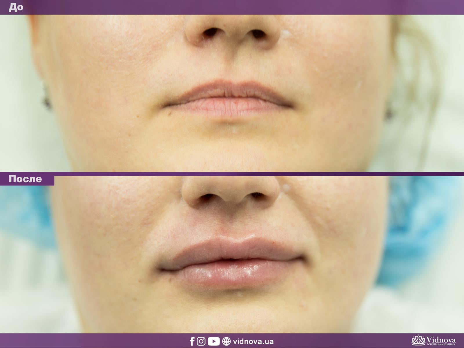 Увеличение губ: Фото До и После - Пример №13-1 - Клиника Vidnova