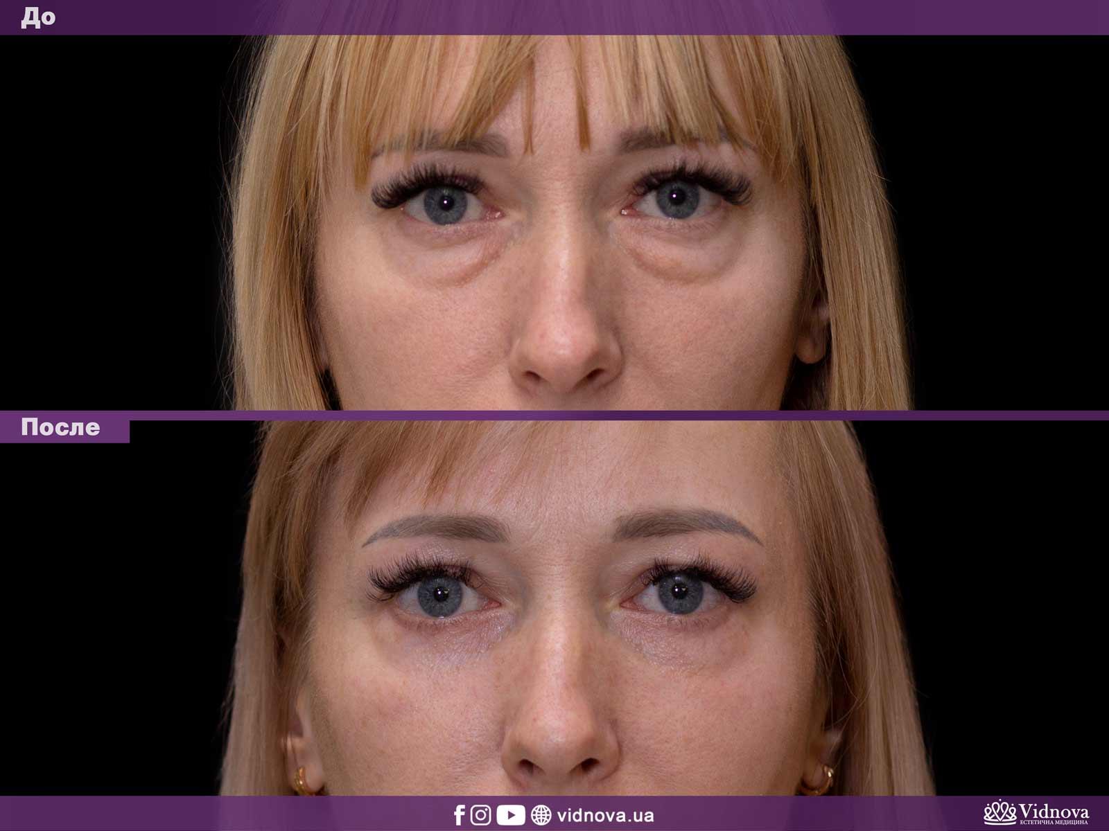 Блефаропластика: Фото До и После - Пример №24-1 - Клиника Vidnova