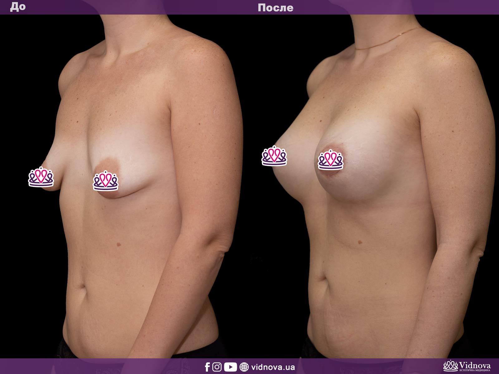 Подтяжка груди: Фото ДО и ПОСЛЕ - Пример №17-2 - Клиника Vidnova