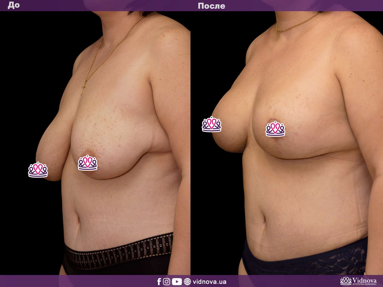 Подтяжка груди: Фото ДО и ПОСЛЕ - Пример №18-2 - Клиника Vidnova