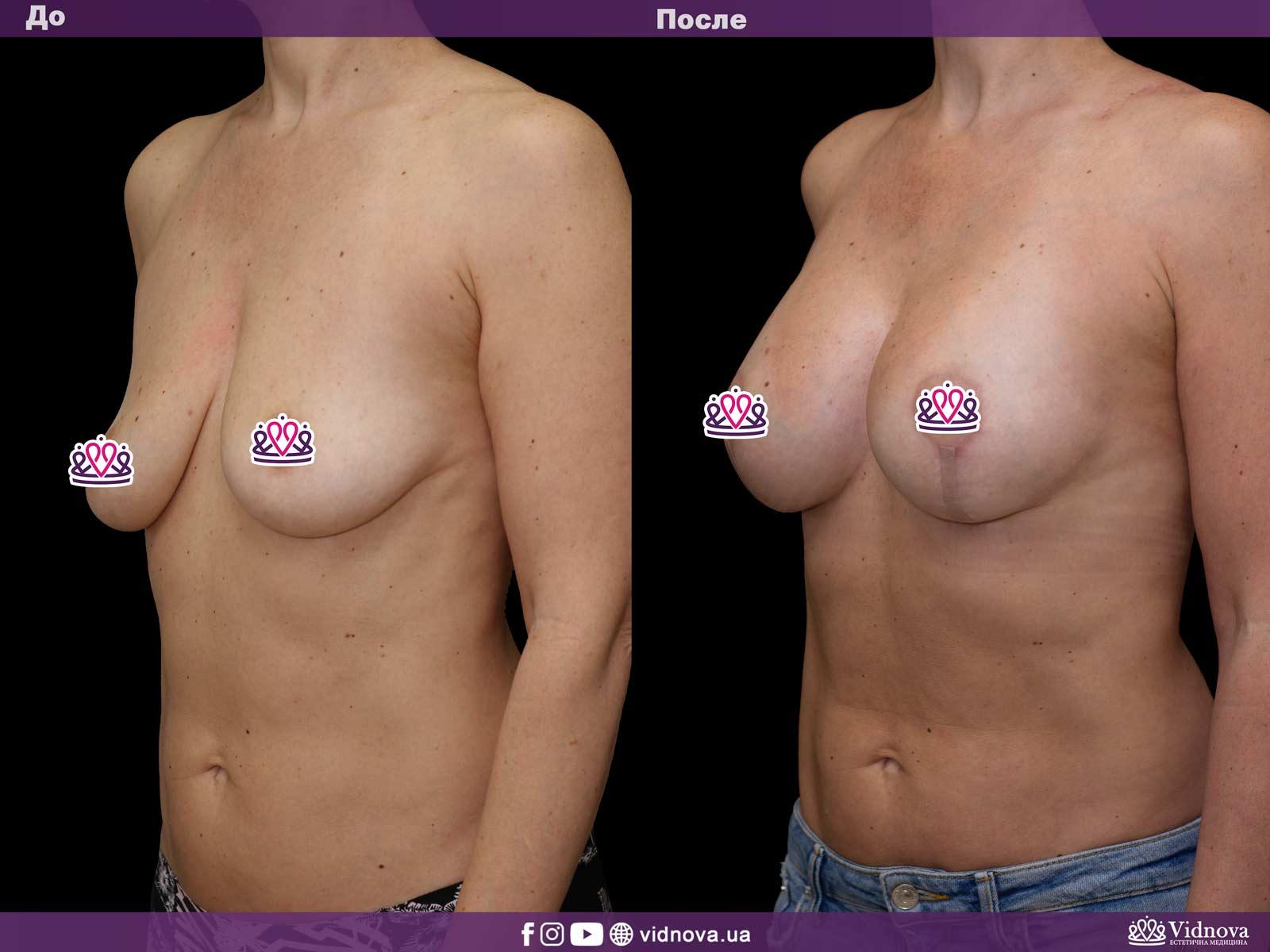 Подтяжка груди: Фото ДО и ПОСЛЕ - Пример №7-2 - Клиника Vidnova