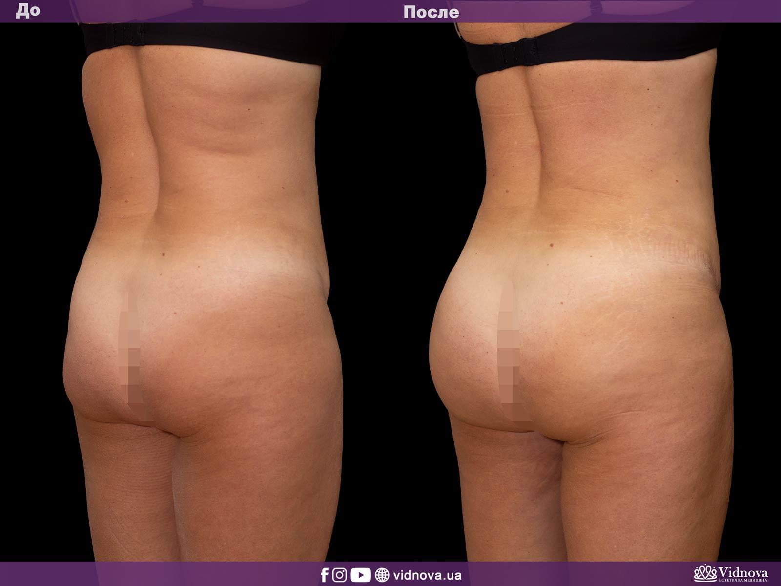 Липоскульптурирование: Фото До и После - Пример №2-2 - Клиника Vidnova