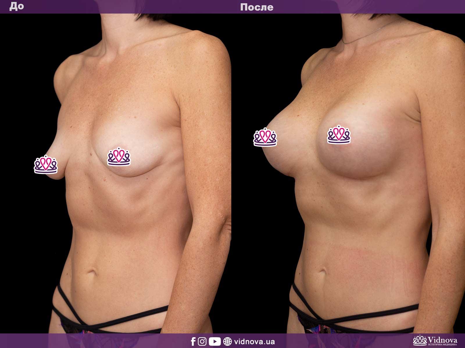 Увеличение груди: Фото ДО и ПОСЛЕ - Пример №32-2 - Клиника Vidnova