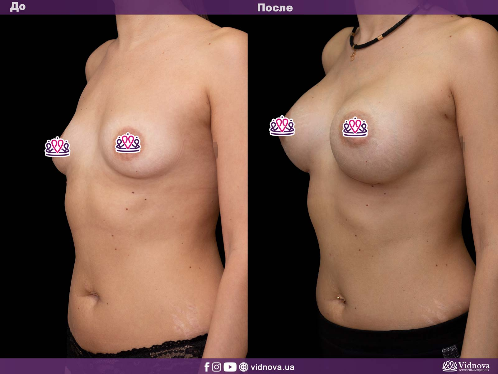 Увеличение груди: Фото ДО и ПОСЛЕ - Пример №13-2 - Клиника Vidnova