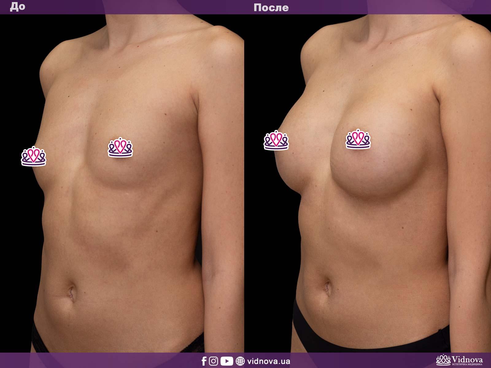 Увеличение груди: Фото ДО и ПОСЛЕ - Пример №14-2 - Клиника Vidnova