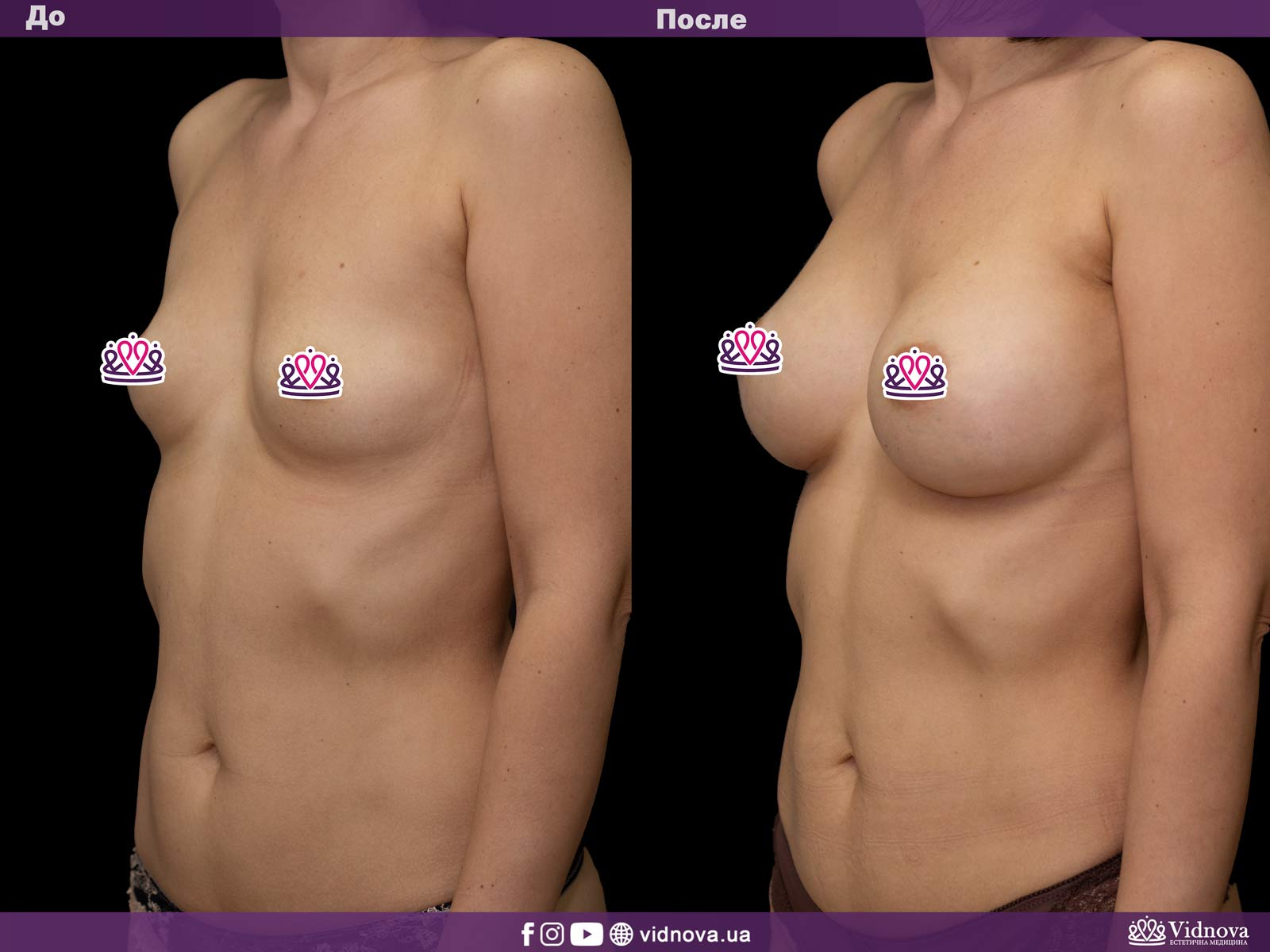 Увеличение груди: Фото ДО и ПОСЛЕ - Пример №9-2 - Клиника Vidnova