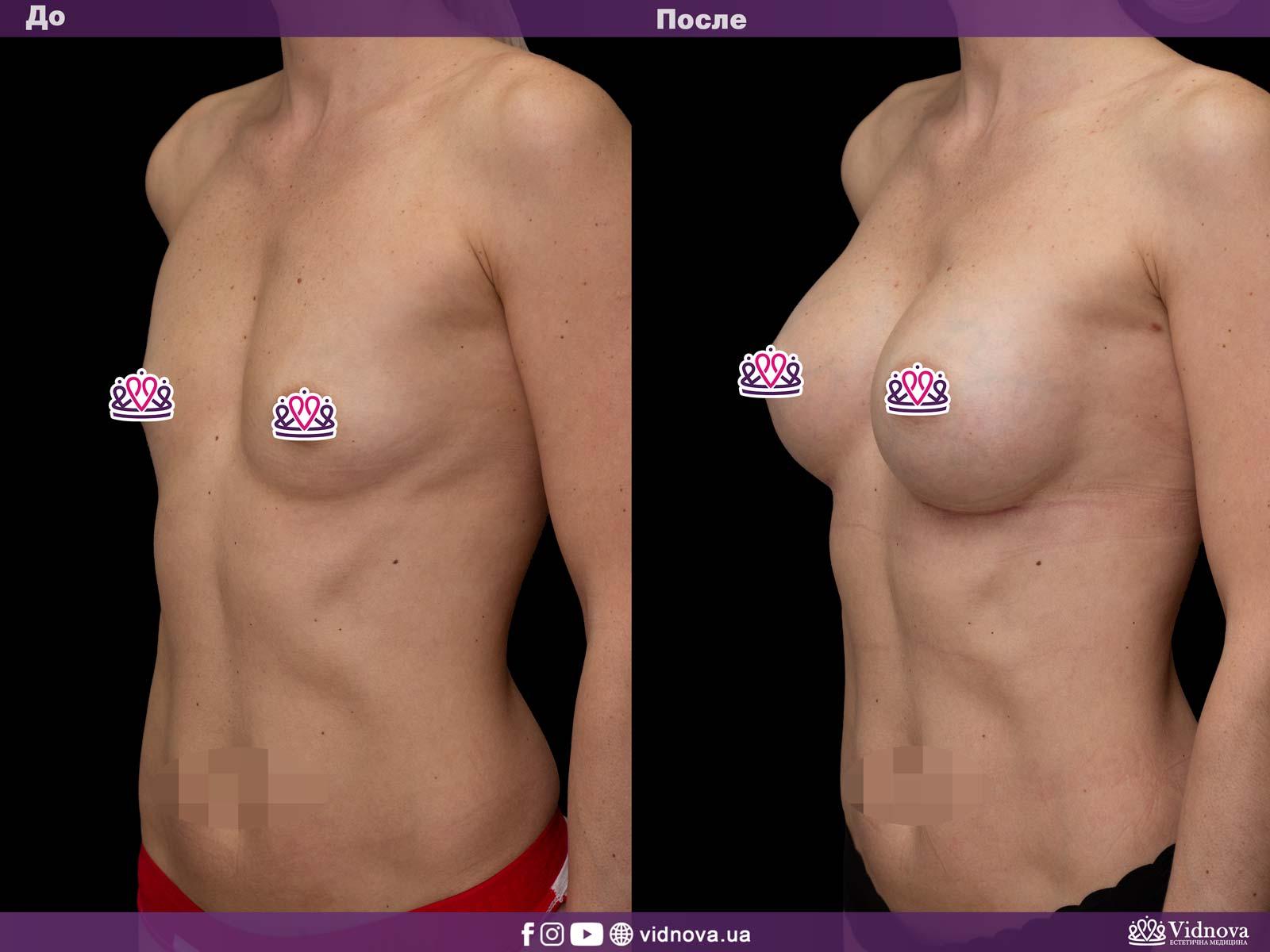 Увеличение груди: Фото ДО и ПОСЛЕ - Пример №22-2 - Клиника Vidnova
