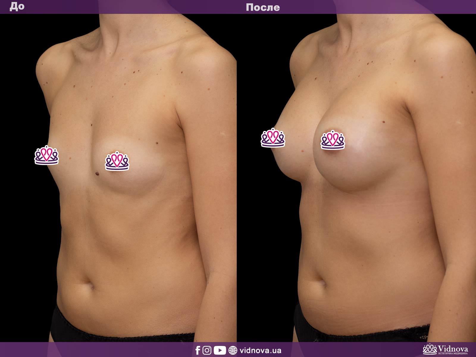 Увеличение груди: Фото ДО и ПОСЛЕ - Пример №21-2 - Клиника Vidnova