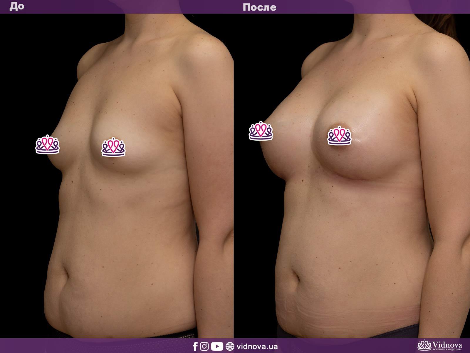 Увеличение груди: Фото ДО и ПОСЛЕ - Пример №23-2 - Клиника Vidnova