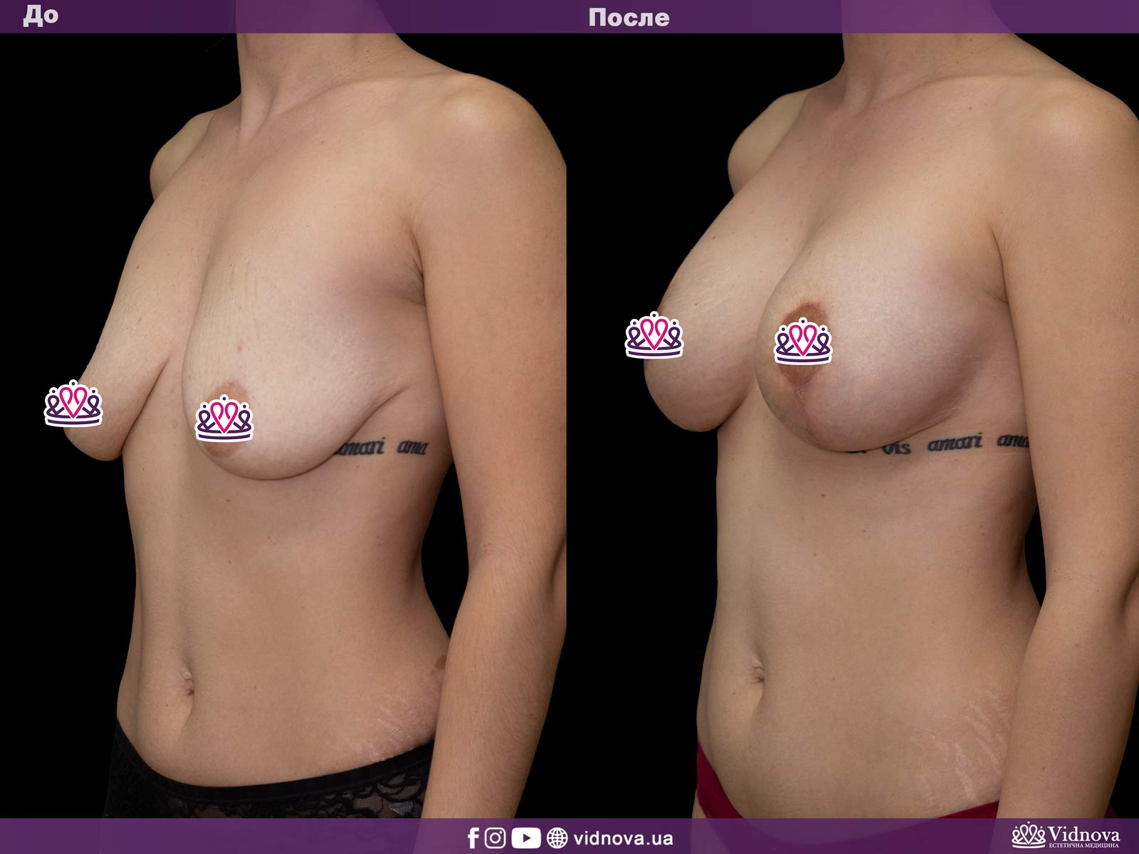 Подтяжка груди: Фото ДО и ПОСЛЕ - Пример №14-2 - Клиника Vidnova
