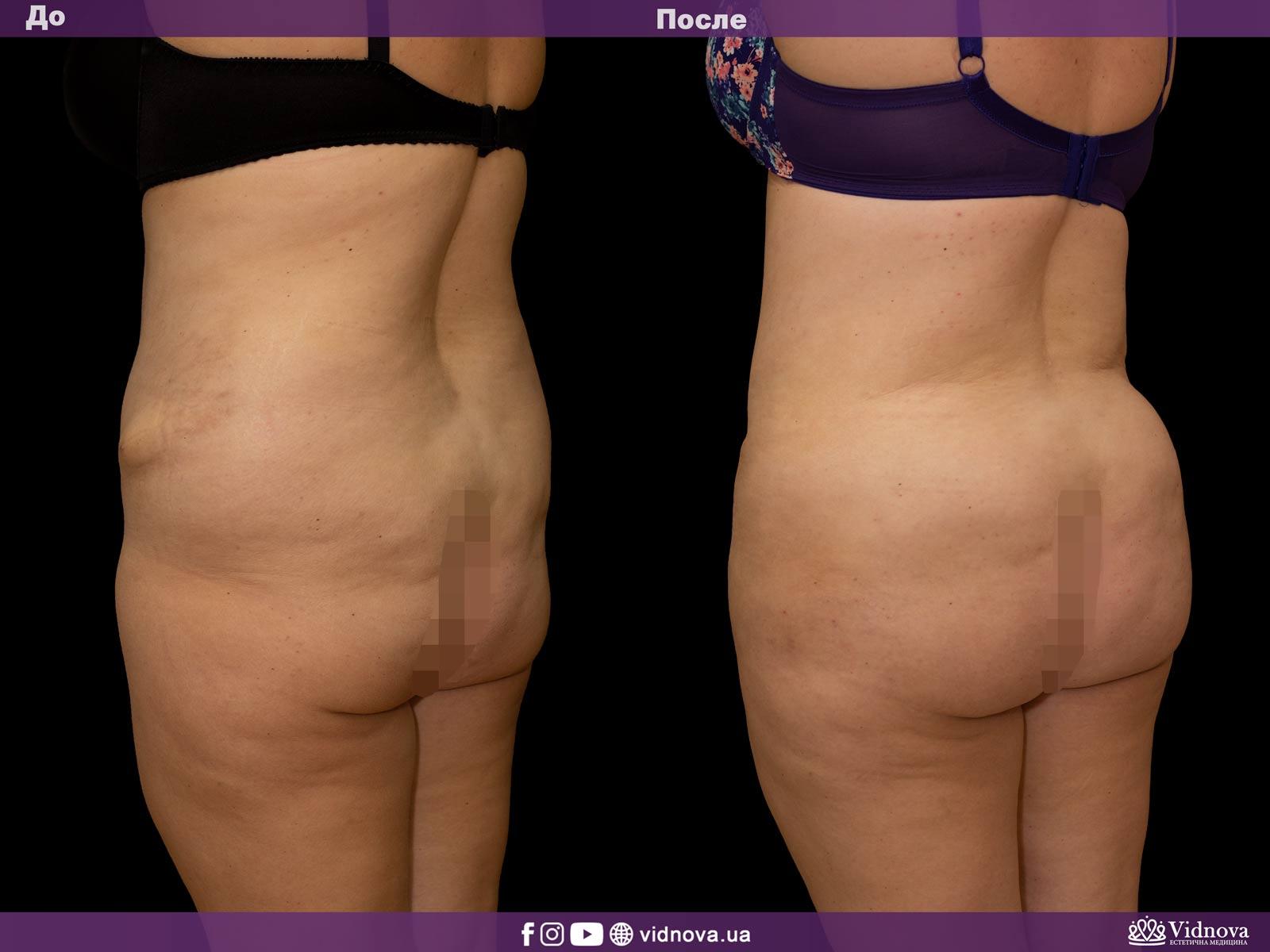 Липоскульптурирование: Фото До и После - Пример №1-2 - Клиника Vidnova
