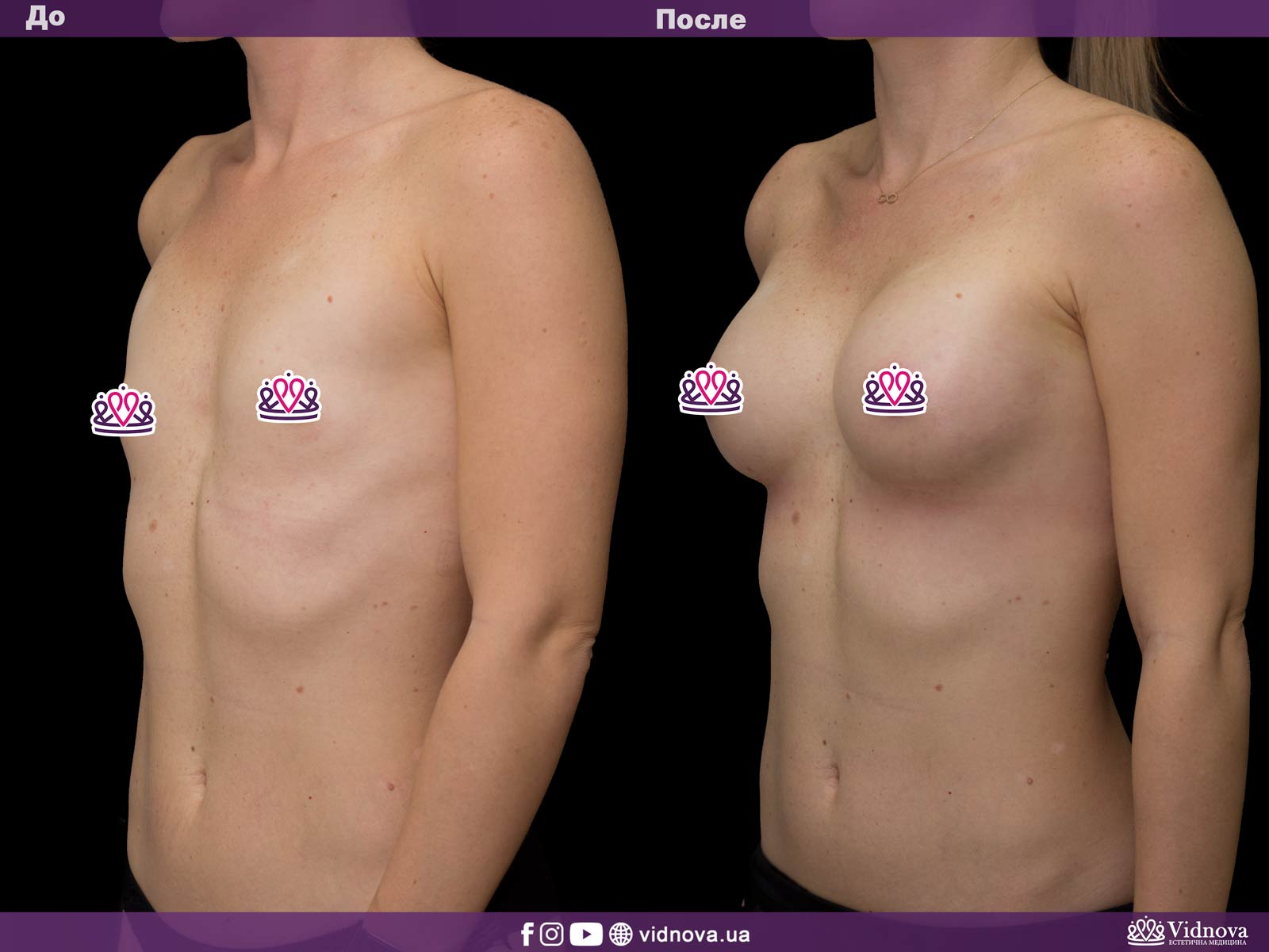 Увеличение груди: Фото ДО и ПОСЛЕ - Пример №35-2 - Клиника Vidnova