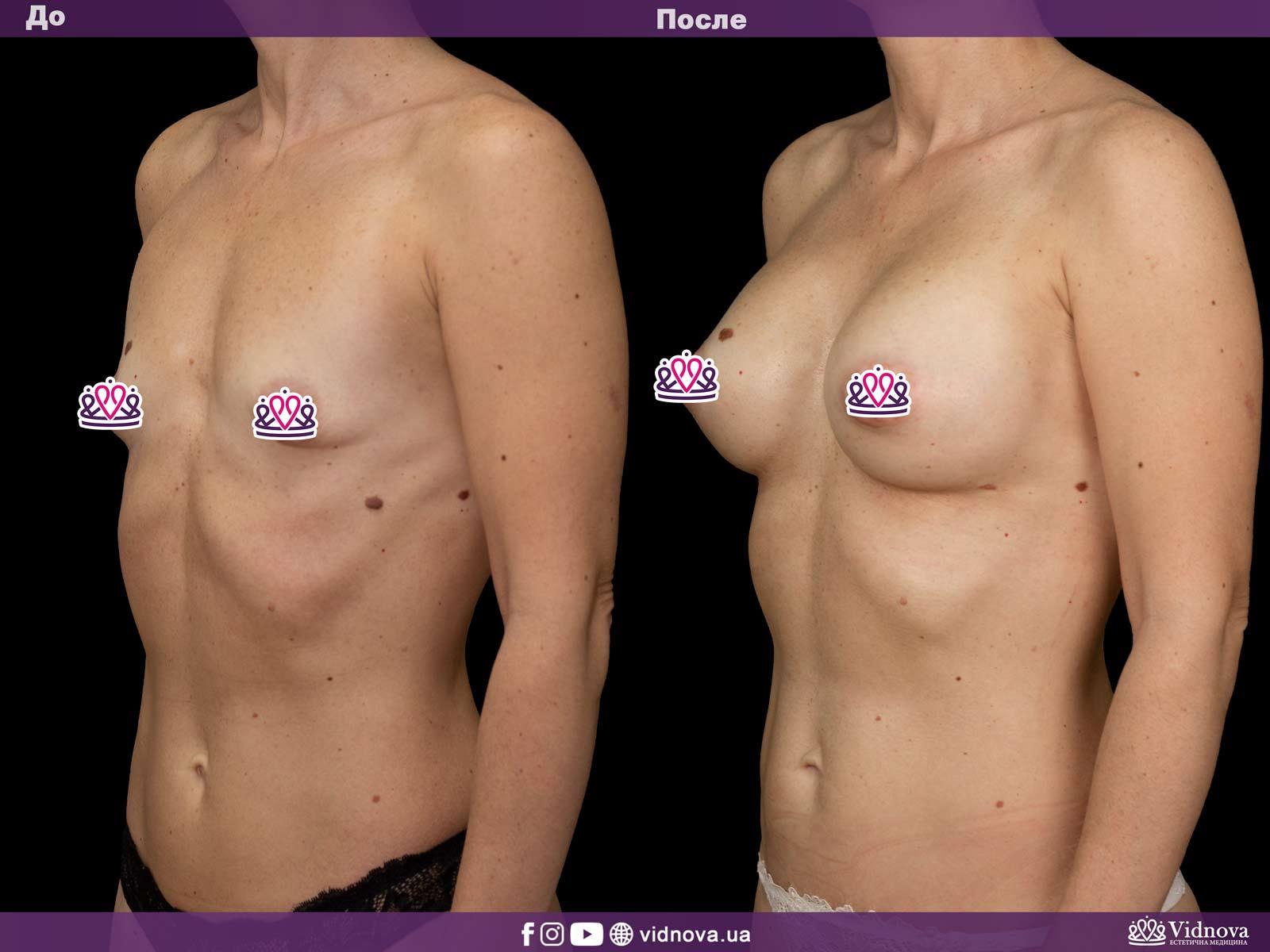 Увеличение груди: Фото ДО и ПОСЛЕ - Пример №26-2 - Клиника Vidnova