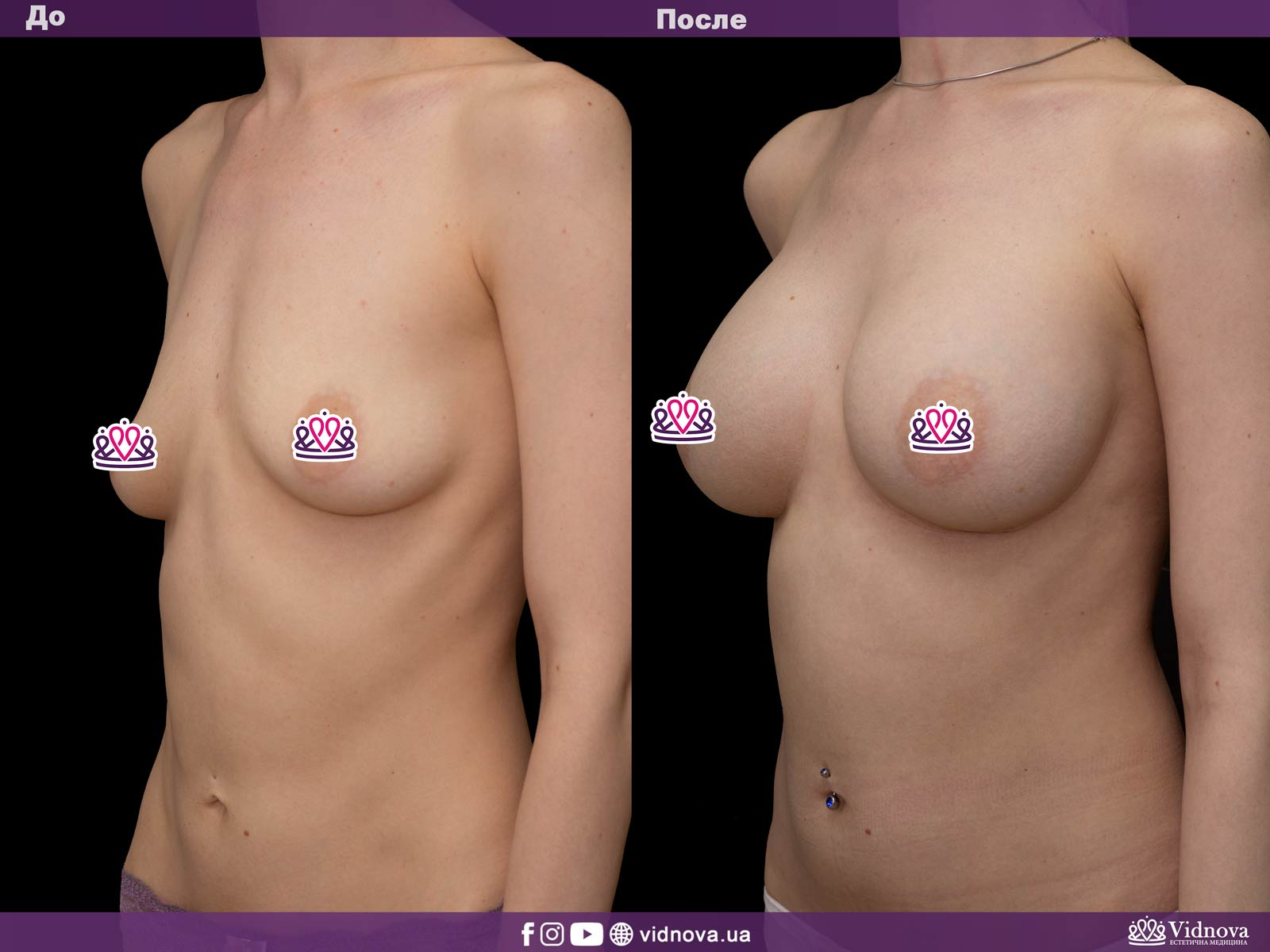 Увеличение груди: Фото ДО и ПОСЛЕ - Пример №11-2 - Клиника Vidnova