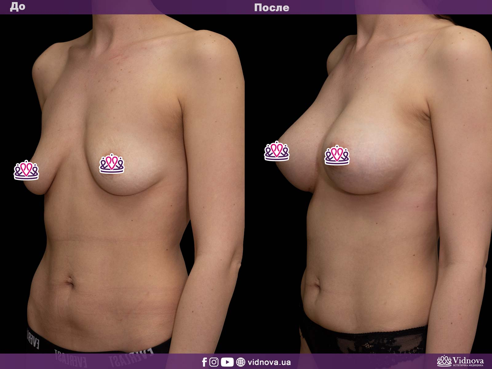 Увеличение груди: Фото ДО и ПОСЛЕ - Пример №12-2 - Клиника Vidnova