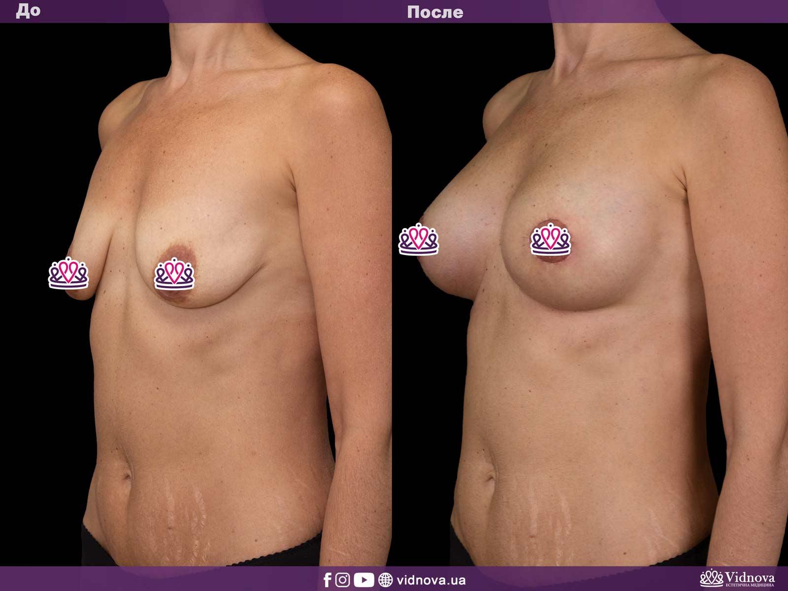 Подтяжка груди: Фото ДО и ПОСЛЕ - Пример №9-2 - Клиника Vidnova