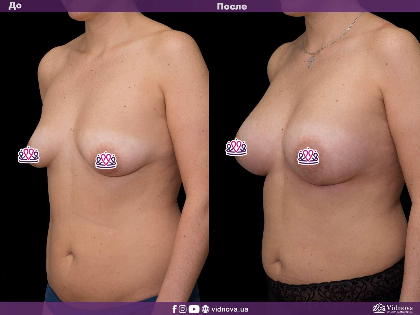 Увеличение груди: Фото ДО и ПОСЛЕ - Пример №37-2 - Клиника Vidnova
