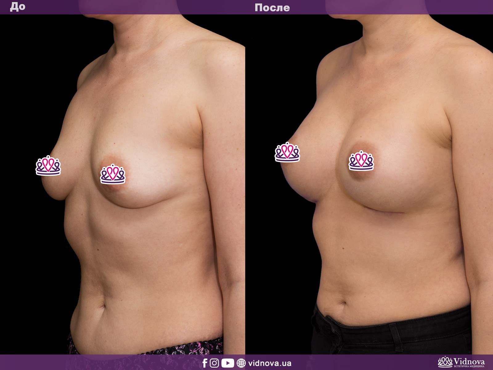 Увеличение груди: Фото ДО и ПОСЛЕ - Пример №30-2 - Клиника Vidnova