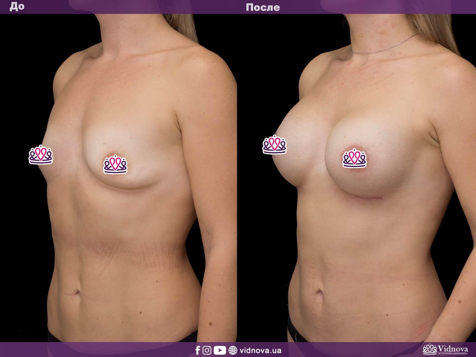 Увеличение груди: Фото ДО и ПОСЛЕ - Пример №28-2 - Клиника Vidnova