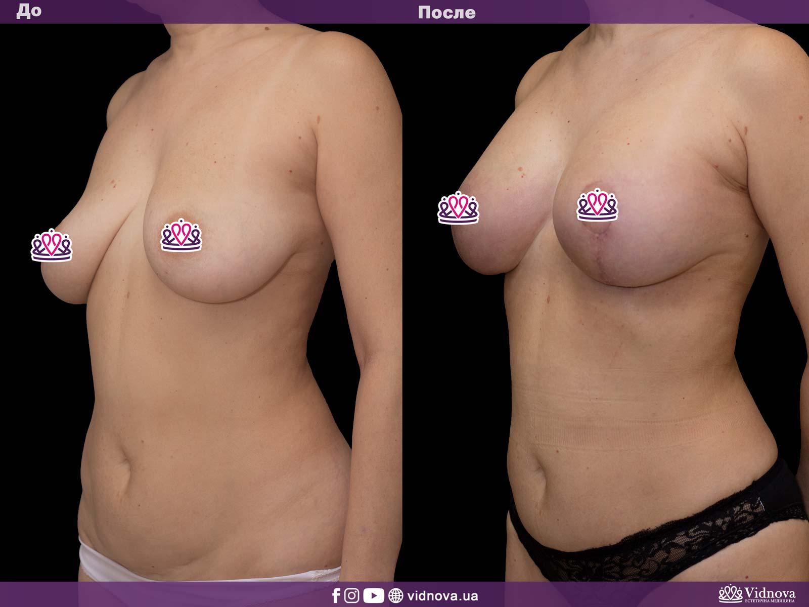 Подтяжка груди: Фото ДО и ПОСЛЕ - Пример №15-2 - Клиника Vidnova