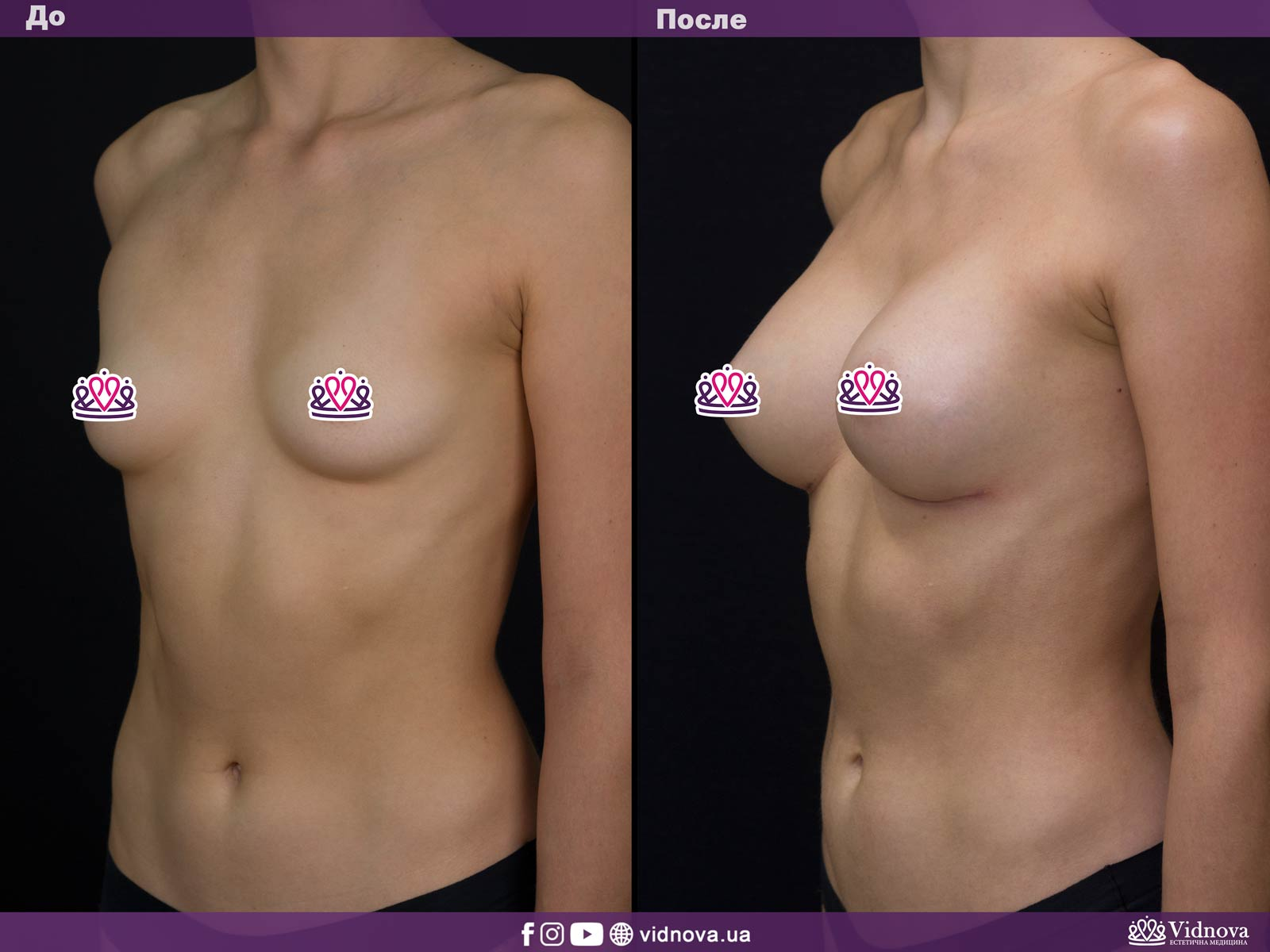 Увеличение груди: Фото ДО и ПОСЛЕ - Пример №2-2 - Клиника Vidnova