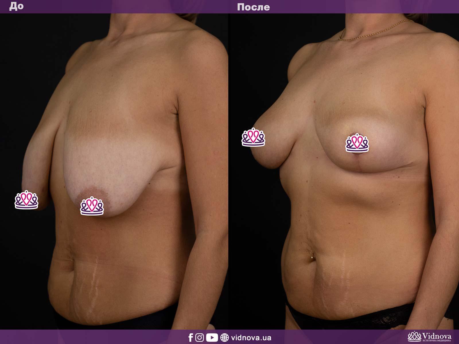 Подтяжка груди: Фото ДО и ПОСЛЕ - Пример №13-2 - Клиника Vidnova