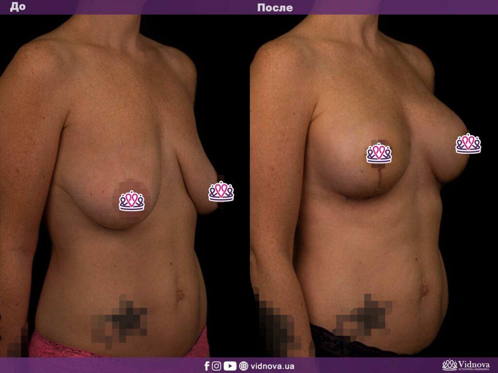 Липофилинг груди 2vs 18 1024x768 - клиника VIdnova